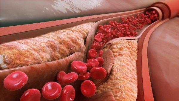 Ученые назвали главную причину развития атеросклероза