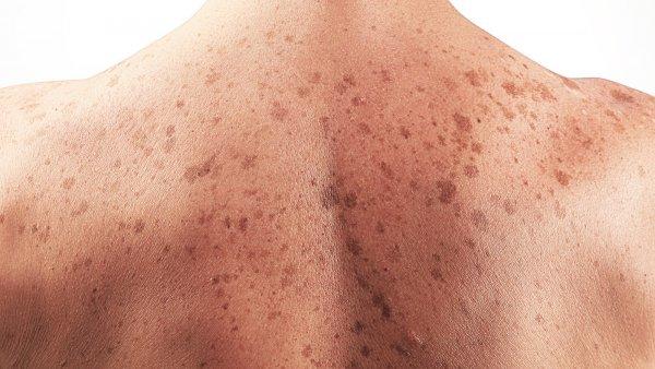 Ученые выяснили, как раковые клетки кожи уклоняются от иммунной системы