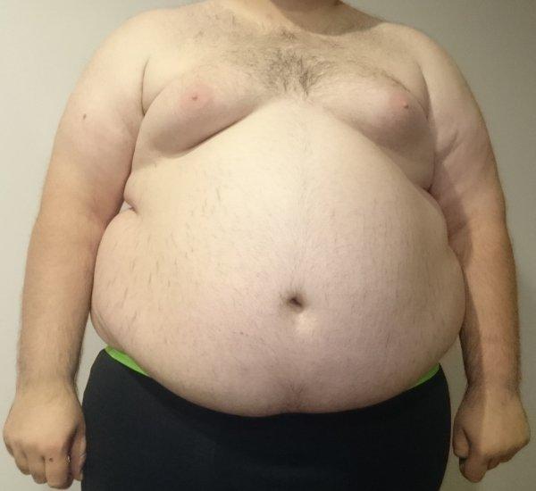 Висцеральный жир провоцирует развитие слабоумия – Ученые